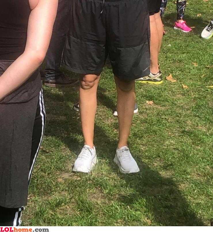 Baby knee