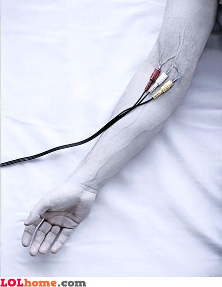 Plug&play arm