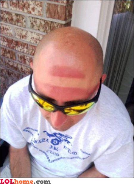 Head sun tan